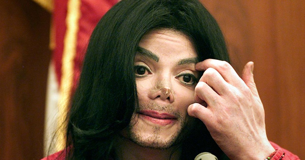 Michael Jackson autopsy confirmed surgery, tattoos and why skin colour changed