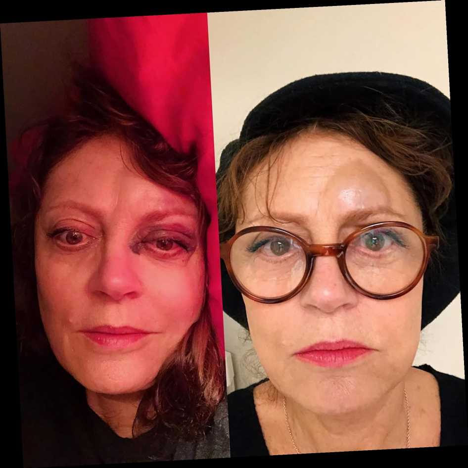Susan Sarandon Hits Her Head, Suffers a Concussion and Fractures Her Nose After 'a Little Slip'