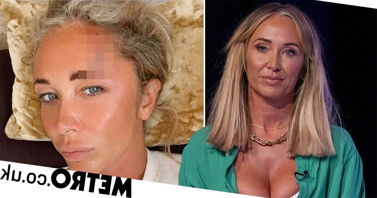 Atomic Kitten's Jenny Frost shares extent of injuries after smashing head open